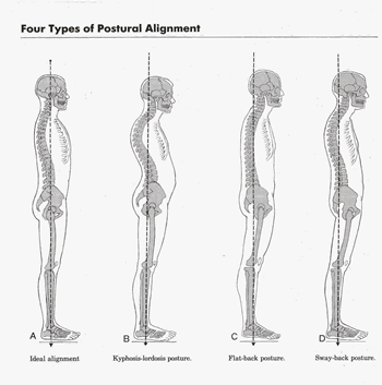 Posture as well Steering further Anatomical Foot Deformities Forefoot Valgus besides Topic as well Gearboxes. on alignment diagram